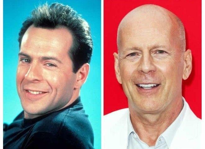 Как выглядели знаменитые актеры до того как побрились налысо